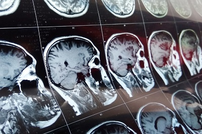 mild traumatic brain injury and postconcussion syndrome settlement in Wisconsin