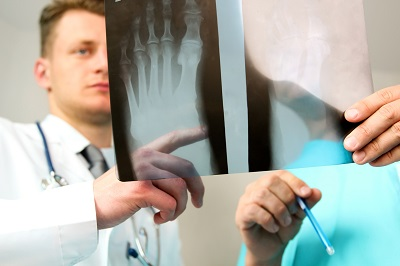 Foot injury X-ray being examined by doctor and car accident victim with fractured foot