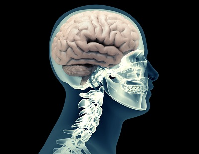 Traumatic brain injury lawsuit settlements